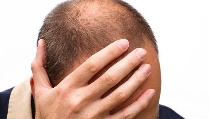 Shilajit for Hair Growth